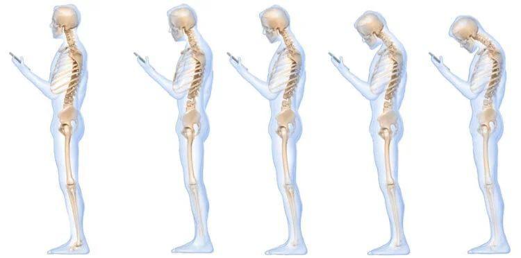 Смартфоны и роговые наросты у человека: научная связь