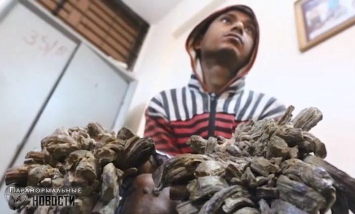 Человек-дерево из Бангладеш готов отрезать руки, лишь бы избавиться от страшных наростов - Паранормальные новости
