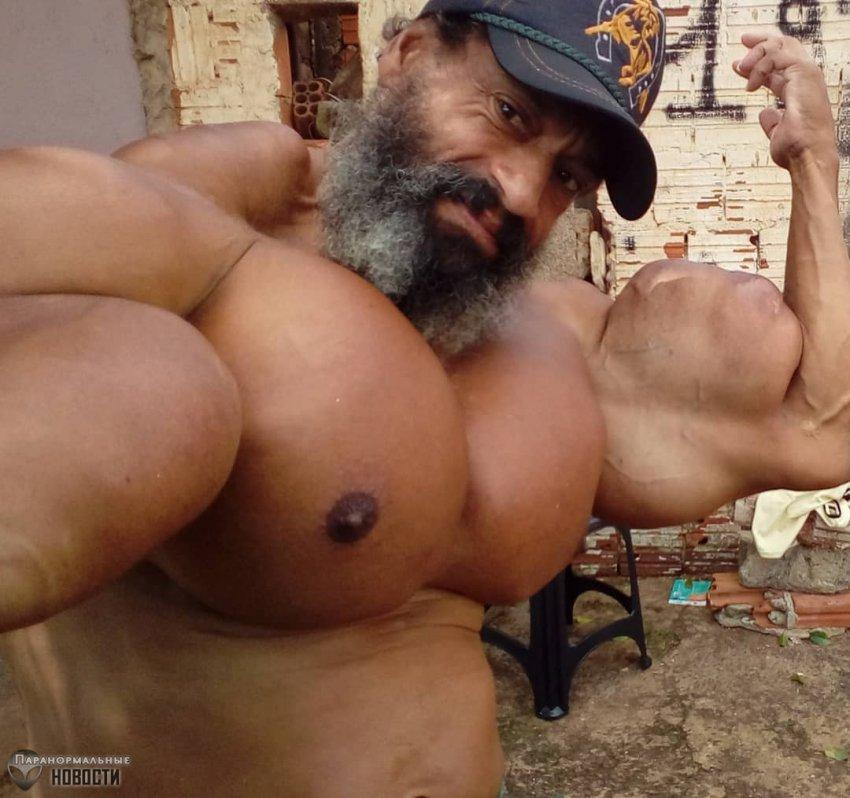 Бразилец закачал в свое тело масло и стал похожим на воздушный шар