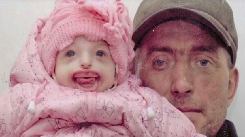 «Когда я увидела ее, то упала в обморок»: Лондонские хирурги сделают российской девочке новое лицо - Паранормальные новости