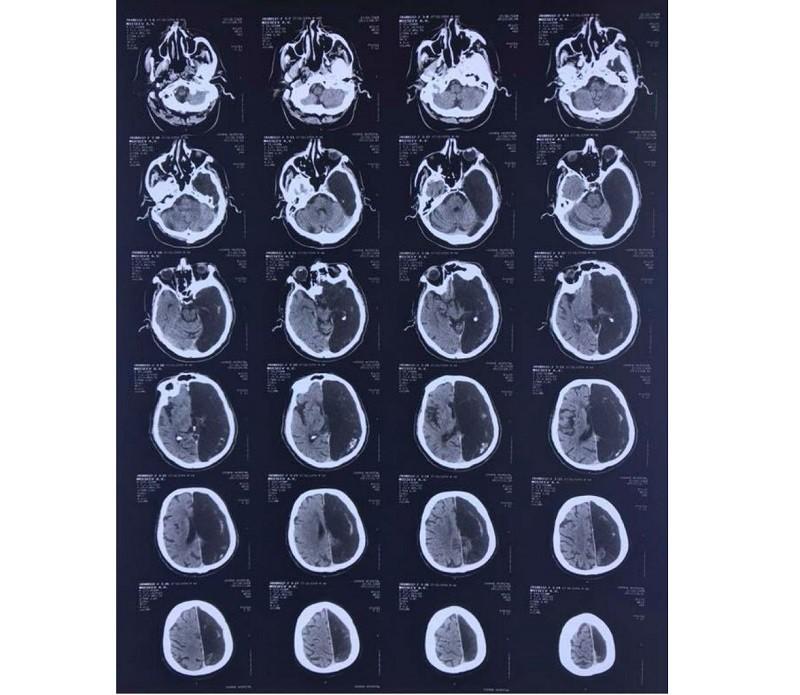 «Ничего не беспокоит»: Житель Подмосковья 60 лет прожил с половиной мозга - Paranormal-news.ru