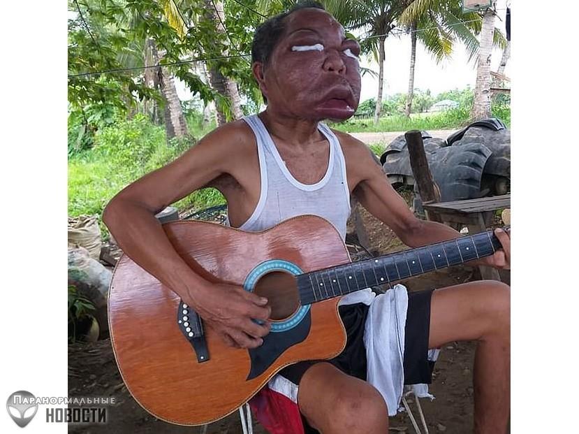 Из-за странной болезни лицо филиппинца увеличилось в два раза | Болезни и мутации | Паранормальные новости