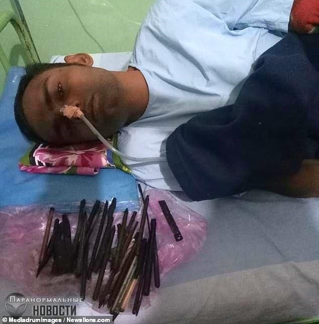 Из индийца вытащили 33 предмета, в том числе бритву и отвертку | Болезни и мутации | Паранормальные новости