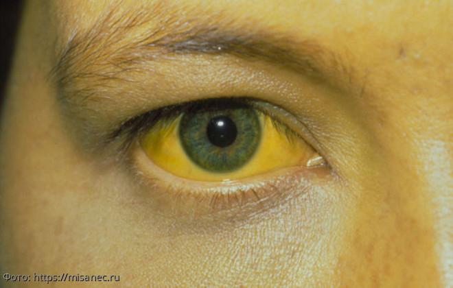 7 опасных заболеваний, которые можно распознать по глазам