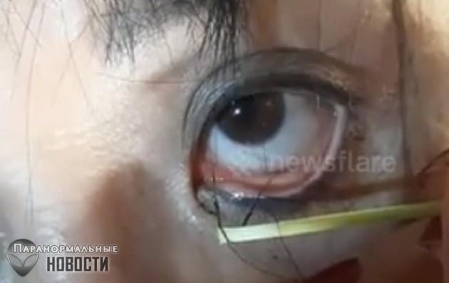 Из глаза женщины вытащили десятки червей-паразитов | Болезни и мутации | Паранормальные новости
