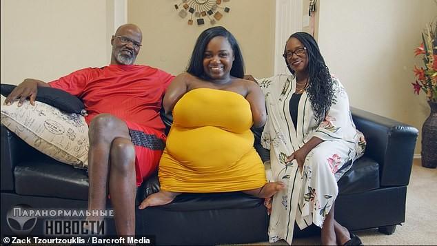 «Я люблю свое тело!»: Рожденная без рук и ног женщина живет полной жизнью | Болезни и мутации | Паранормальные новости