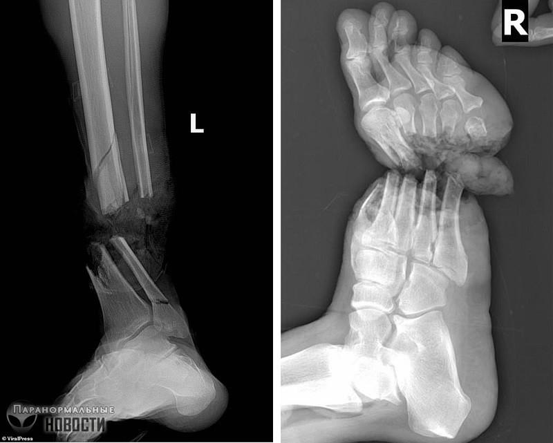 Мужчине пришили отрезанные ноги и он научился нормально ходить | Болезни и мутации | Паранормальные новости
