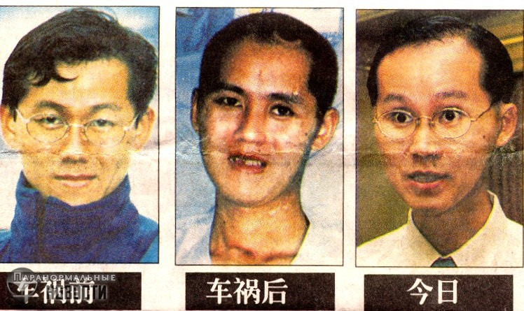В Сингапуре прославился мужчина, у которого половина мозга вытекла на дорогу во время ДТП | Чудо-люди | Паранормальные новости