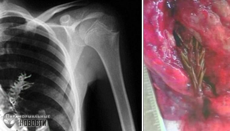10 случаев пугающего паразитирования в теле человека | Болезни и мутации | Паранормальные новости