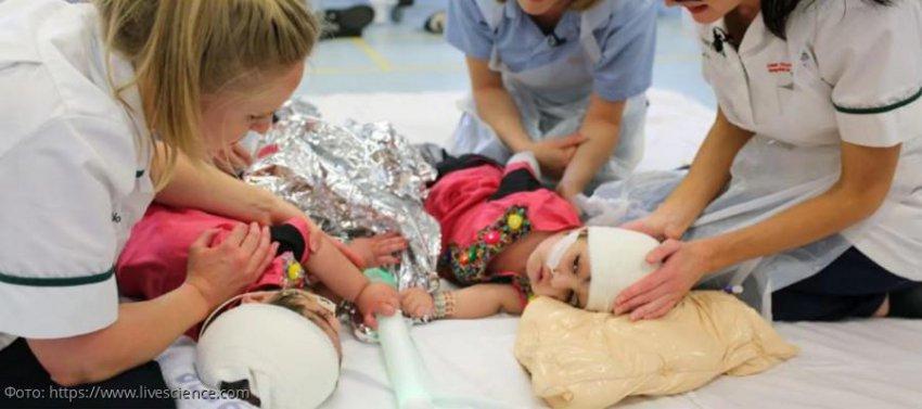 Британские врачи провели успешную операцию по разделению сиамских близнецов, сросшихся головами