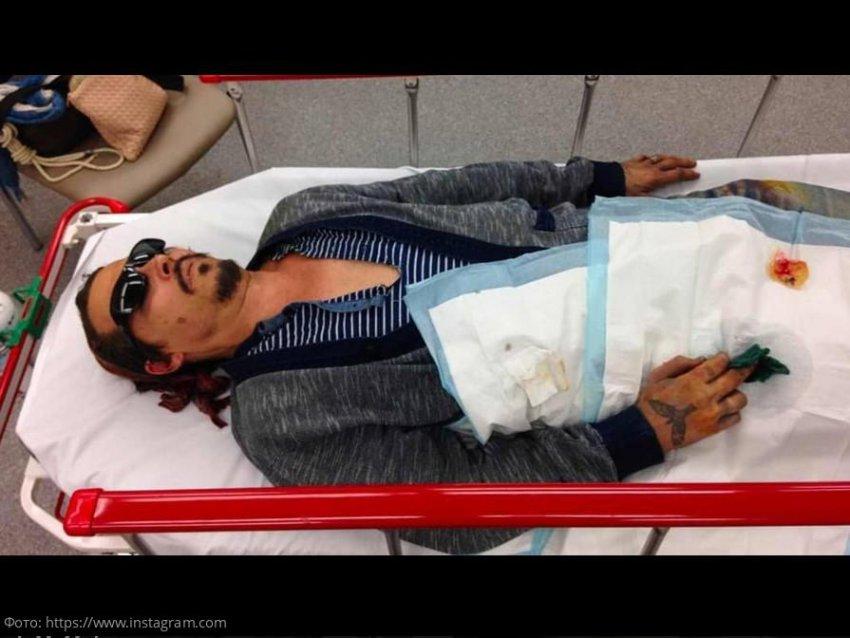 В Сети обсуждают фото покалеченного Джонни Деппа на носилках после драки с Эмбер Хёрд
