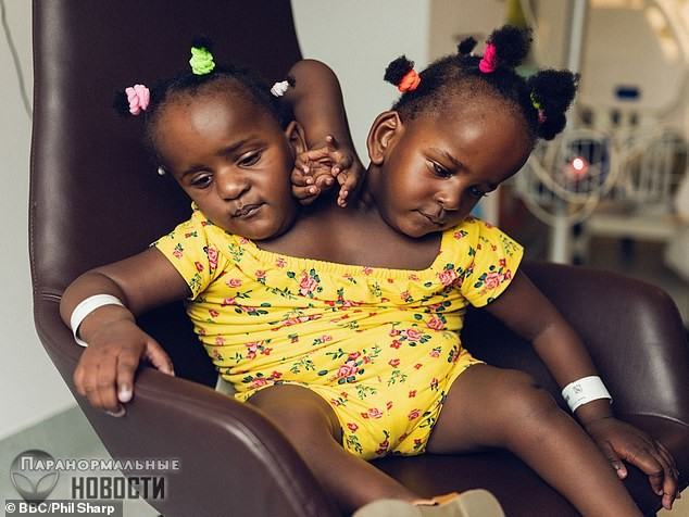 Марием и Ндийе - близнецы с двумя головами на одном теле | Болезни и мутации | Паранормальные новости