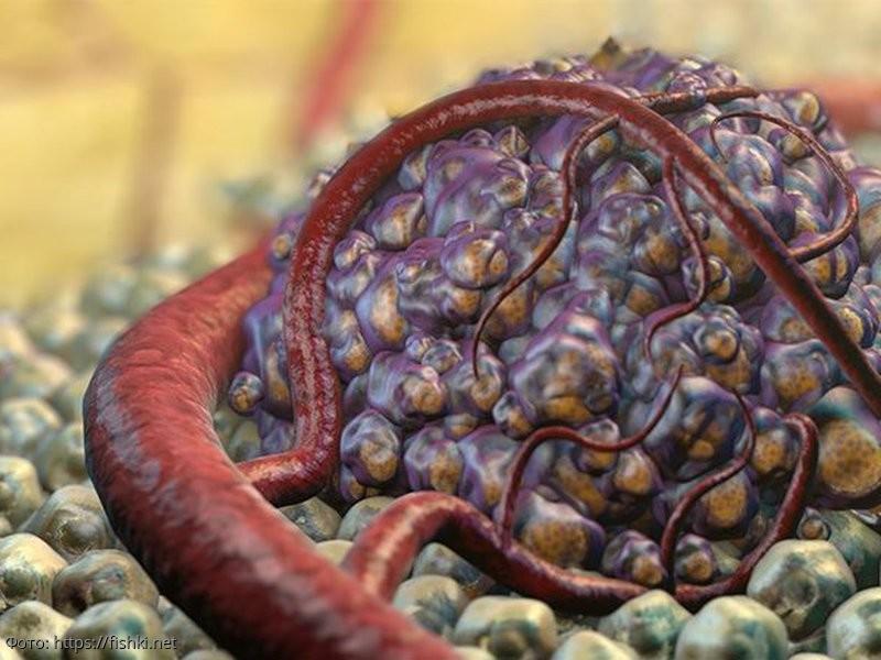 Как опознать рак: названы основные симптомы