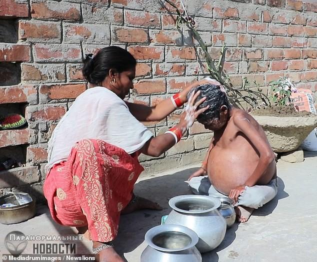 У жителя Индии без остановки растет желудок | Болезни и мутации | Паранормальные новости