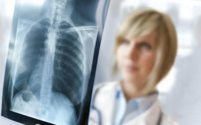 Эксперты развенчали популярные мифы о раке легких