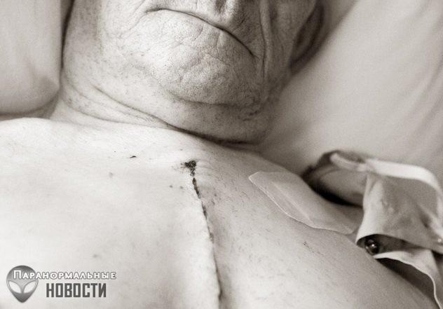 Ночной кошмар в реальности: Проснувшиеся во время хирургической операции   Загадки человека   Паранормальные новости