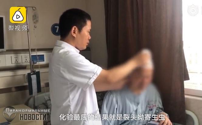 В голове китайца 30 лет жил 10-сантиметровый червь | Болезни и мутации | Паранормальные новости