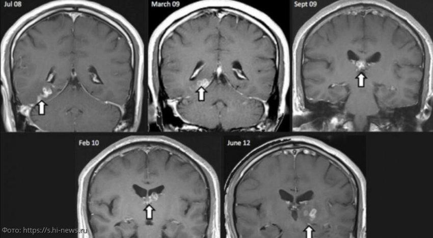 Мужчина 30 лет прожил с большим червем в головном мозге