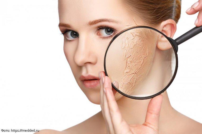 Негативные последствия стресса для женской красоты и способы борьбы с ними