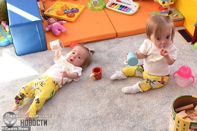 Чудом выжившие близнецы с крайне редкой и смертельно опасной «стеклянной» болезнью | Болезни и мутации | Паранормальные новости