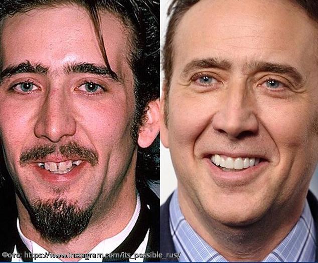 Фото до и после: 5 мировых звезд с далеко не голливудской улыбкой