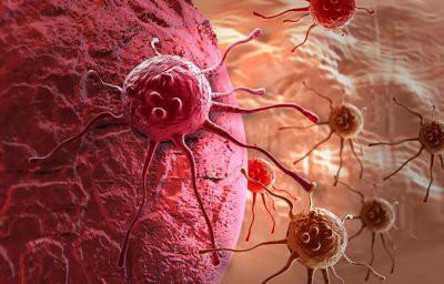 Ученые раскрыли новый механизм рака на последней стадии болезни