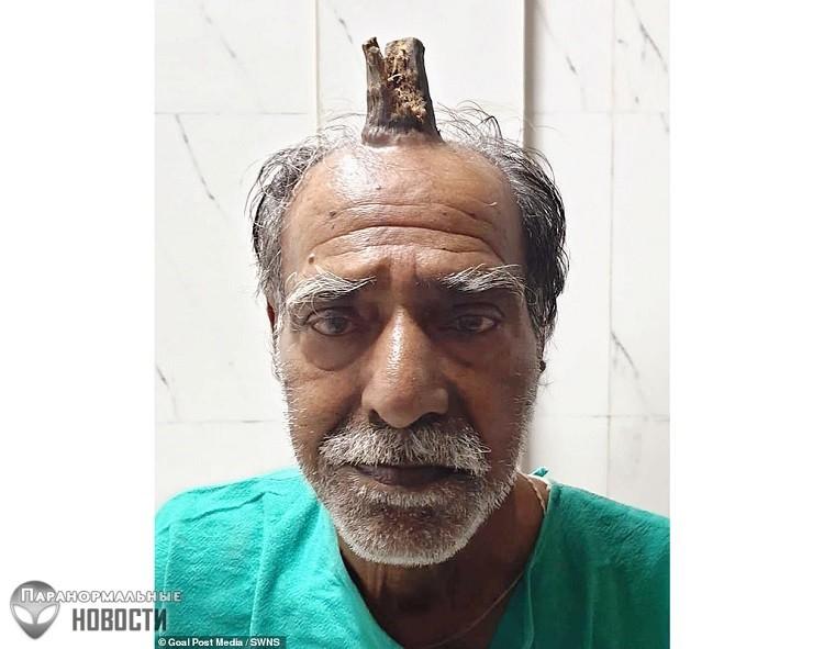 На лбу пожилого индийца вырос «дьявольский» рог   Болезни и мутации   Паранормальные новости