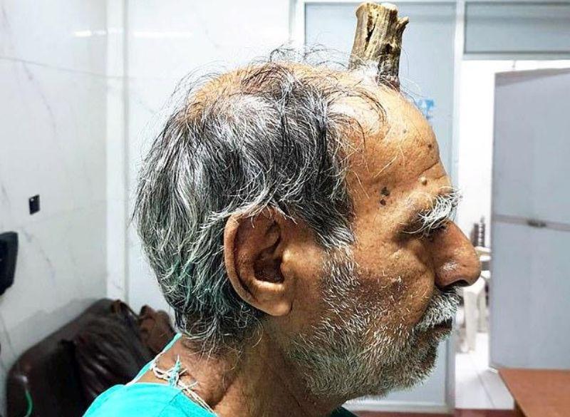 На лбу индийца появился «дьявольский» рог: опубликованы жуткие фото
