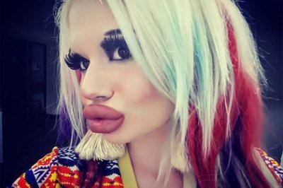 В Болгарии студентка увеличила губы в три раза, фото