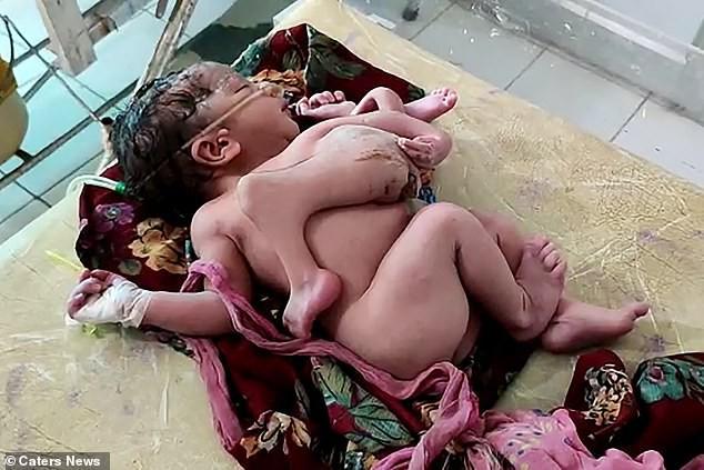 В Индии родилась девочка с четырьмя ногами и тремя руками | Болезни и мутации | Паранормальные новости