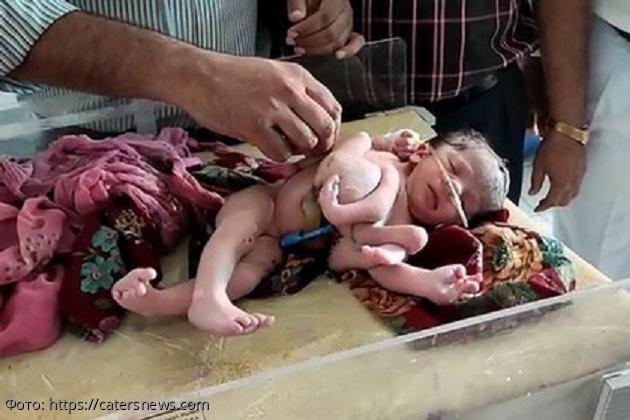 В Индии родилась «особенная» девочка с семью конечностями