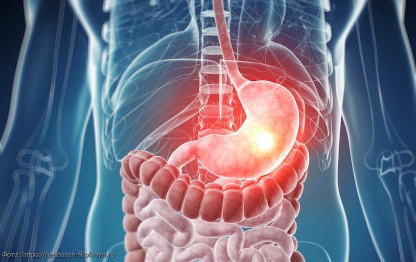 Мужчины чаще страдают от рака желудка