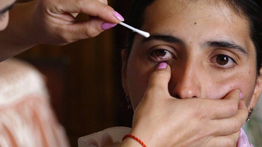 Разгадана тайна «плачущей кристаллами» армянской девушки
