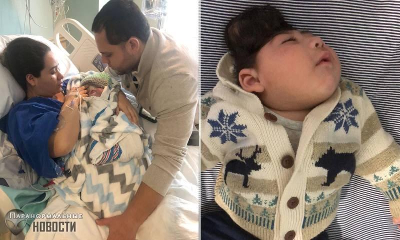 Уникальный случай: Ребенок выжил, родившись с мозгом наружу и без части костей черепа