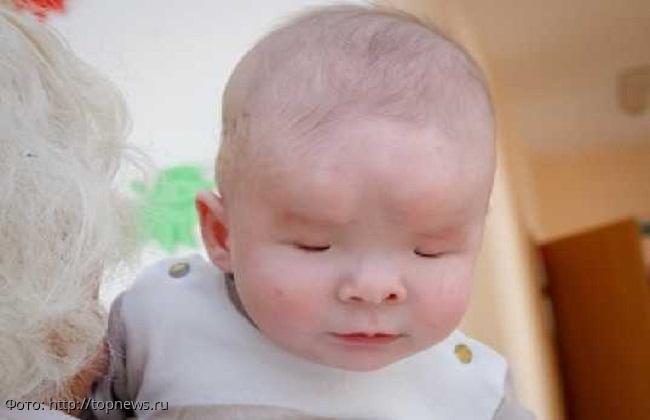 В российской глубинке родился мальчик без глаз: от него поочерёдно отказались все родные