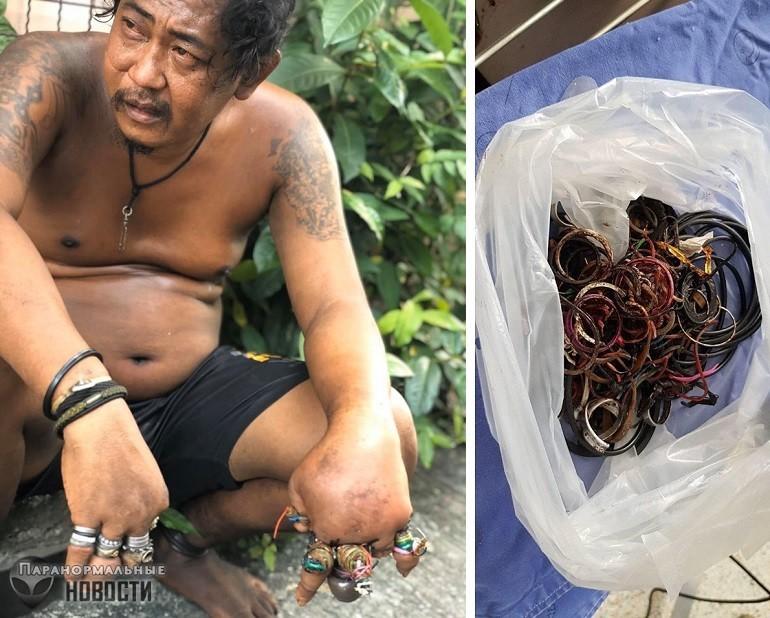 Житель Таиланда несколько лет носил на пальцах десятки колец и это привело к ужасным последствиям