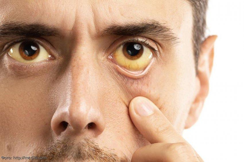 Три главных симптома, говорящих о серьезных проблемах с печенью