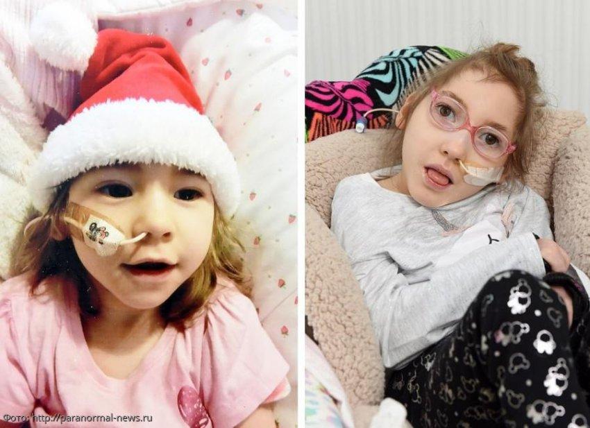 История из жизни: девочка, которая родилась без мозга, вопреки ожиданиям смогла дожить до 6 лет