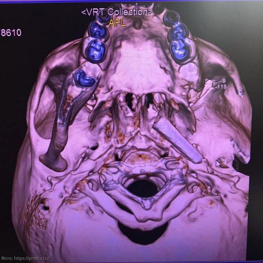 Медики спасли девочку, которая полгода ходила с художественной кисточкой в голове