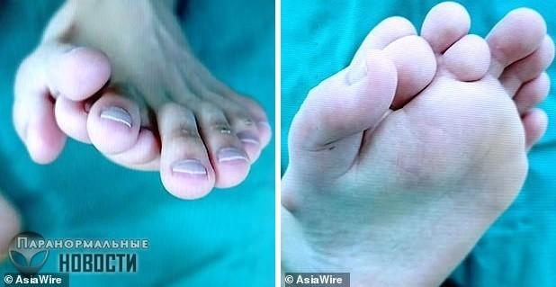 В Китае прооперировали мужчину с 9 пальцами на ноге