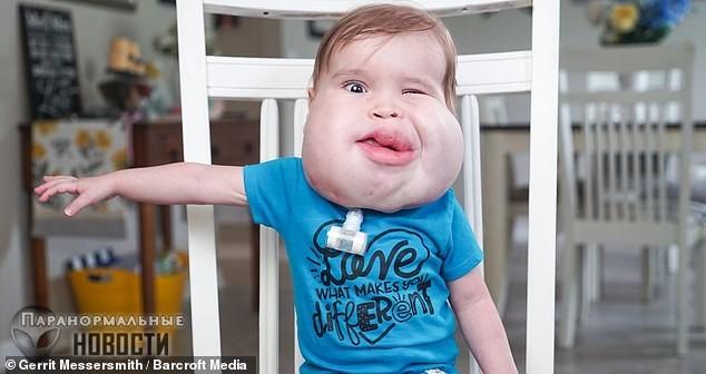 Редкая генетическая аномалия сделала малыша похожим на персонаж из мультфильма