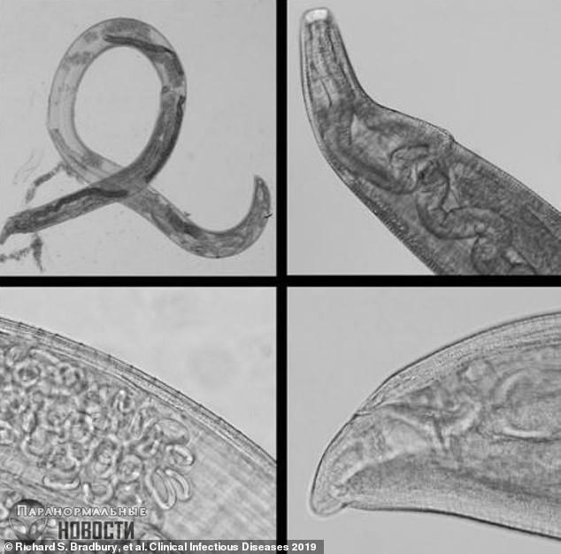 Крайне редкий случай заражения человека коровьими глазными червями произошел в Калифорнии