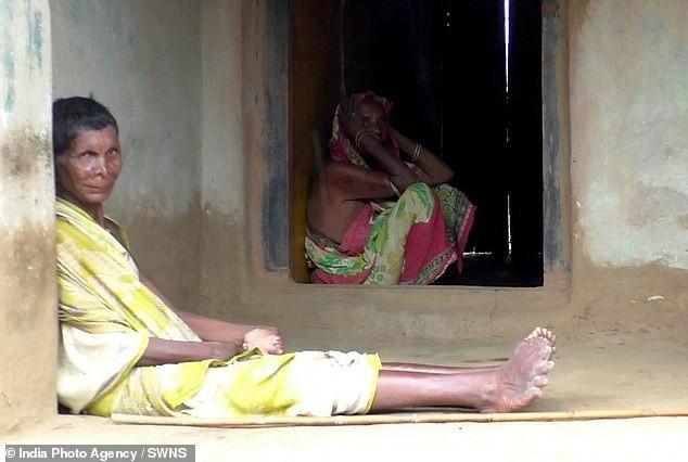 У 63-летней индианки 19 пальцев на ногах и 12 на руках