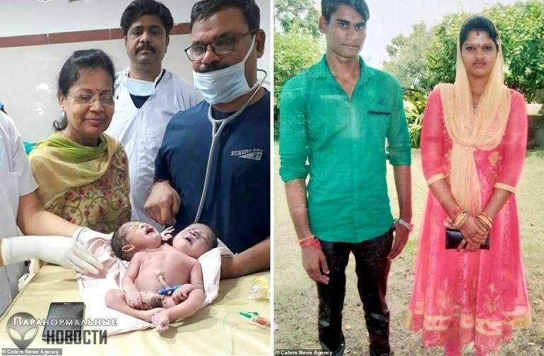 В Индии родился ребенок с 2 головами и 3 руками