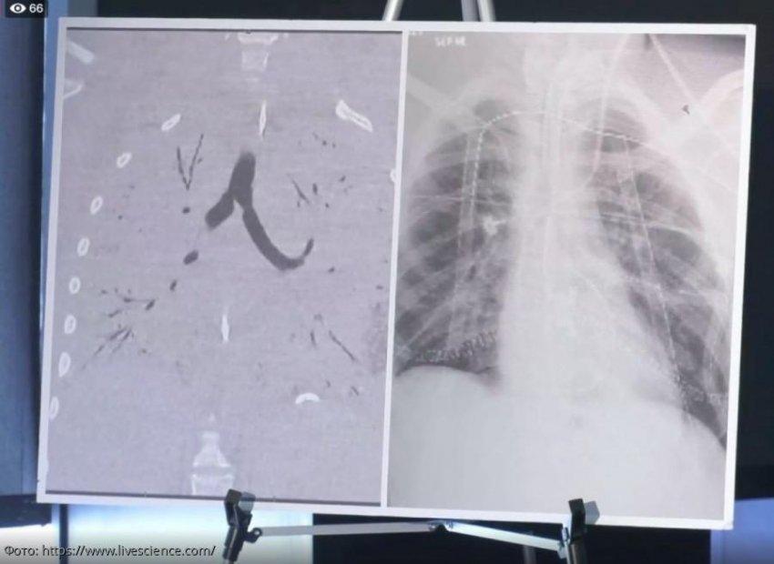 Легкие подростка были так сильно повреждены от вейпинга, что ему потребовалась двойная пересадка