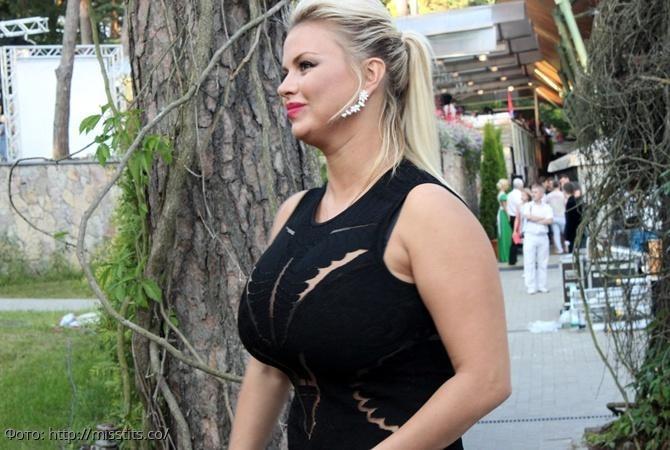Анна Семенович впервые рассказала о своем диагнозе и пластике груди