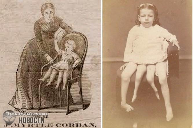 История четырехногой женщины Миртл Корбин