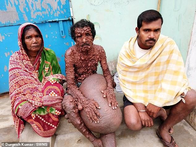 Индиец по прозвищу «человек-бородавка» покрыт мелкими опухолями с ног до головы (Осторожно! Шокирующий контент 18+)