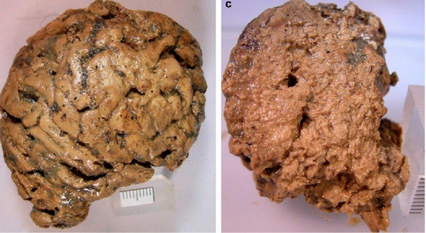 Раскрыта тайна уцелевшего человеческого мозга возрастом 2600 лет