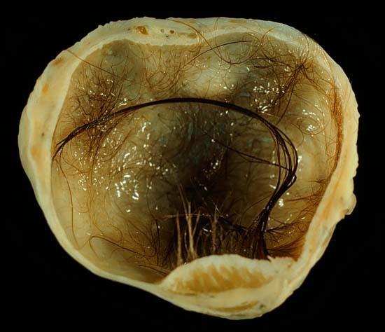 Из тела россиянки удалили опухоль яичника, забитую выросшими в ней ...волосами